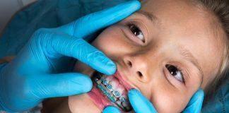 Σιδεράκια Δοντιών
